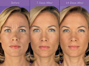 fountain of youth botox